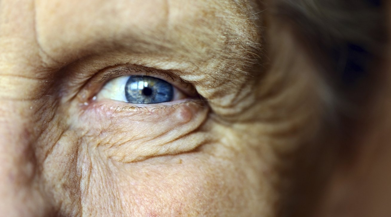 Vision loss in older individuals