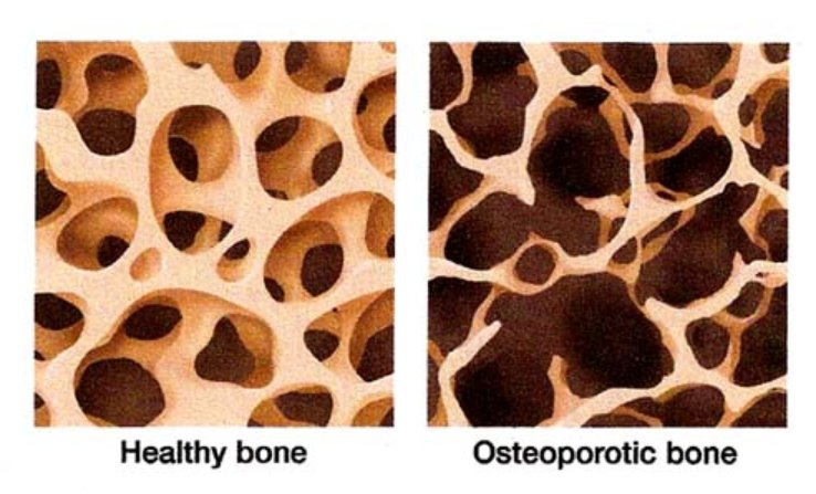 Osteoporotic bone