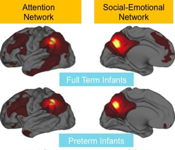 A comparison of brain scans from babies born at full term and at least 10 weeks prematurely shows differences in the activity of brain networks. Credit: Washington University School of Medicine
