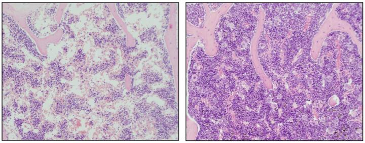Representative bone marrow images of aplastic anemia (left) and cured anemia upon telomerase gene therapy (right).