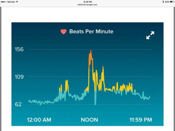 This image shows heartbeat on an activity tracker/smartphone app. Credit: Alfred Sacchetti, MD