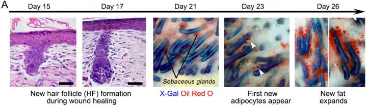 The progression of the wound during healing when hair follicles are present. Credit: Penn Medicine