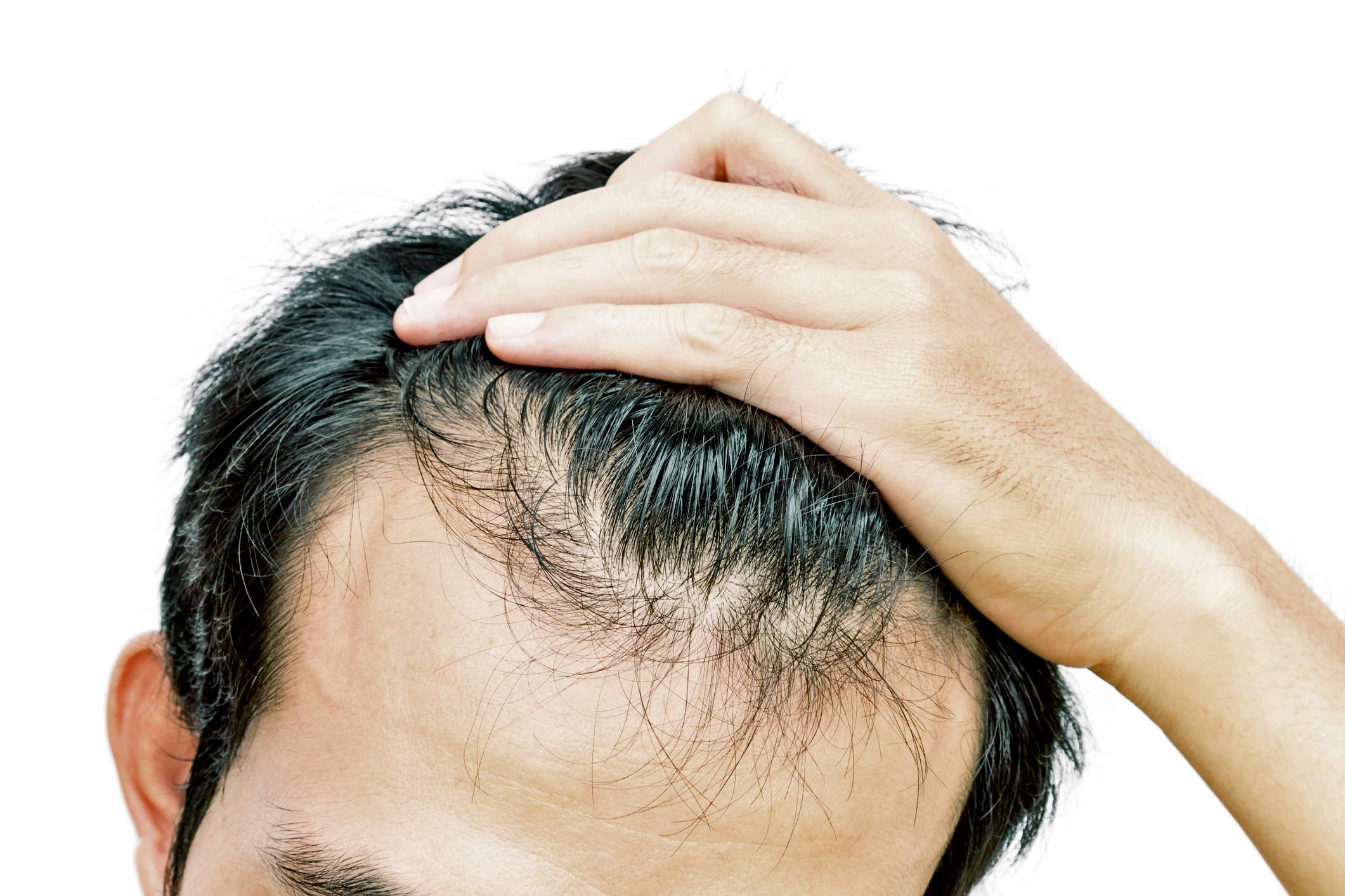 Erectile dysfunction from hair-loss drugs can linger