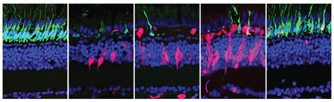 These 5 images, spanning 28 days, show how regeneration happens in the zebrafish retina. Rods are shown in green, regenerating cells are shown in red, and all other cells are labeled with blue. As the rods die, regenerating cells increase and replace the lost rods. (Credit: Patton Lab/Vanderbilt)