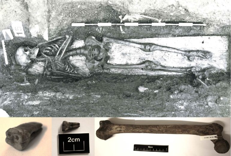 skeleton with DNA from enteric fever